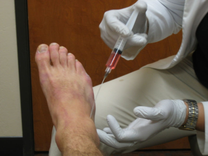 injection into foot