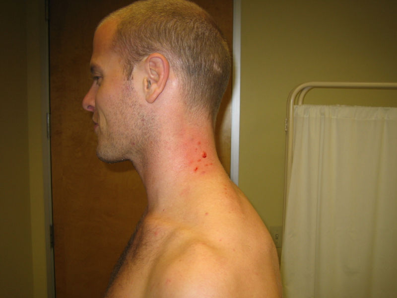 image of mark on tims neck