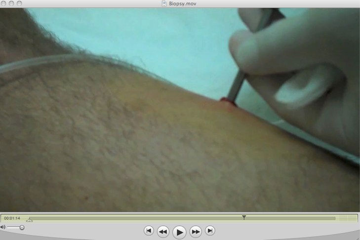 injection in thigh